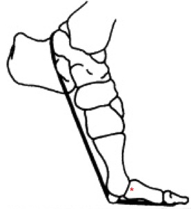 Schematic of a hyper-dorseflexed proximal toe joint (indicated by red star).