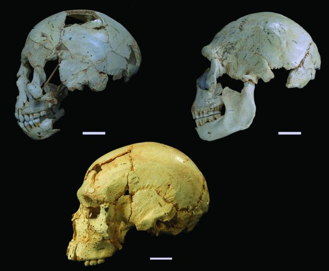 Crania 9, 15 and 17 (clockwise from top left). Cranium 9 is an early adolescent and the other two are adults - lookit how the facial anatomy changes with age!
