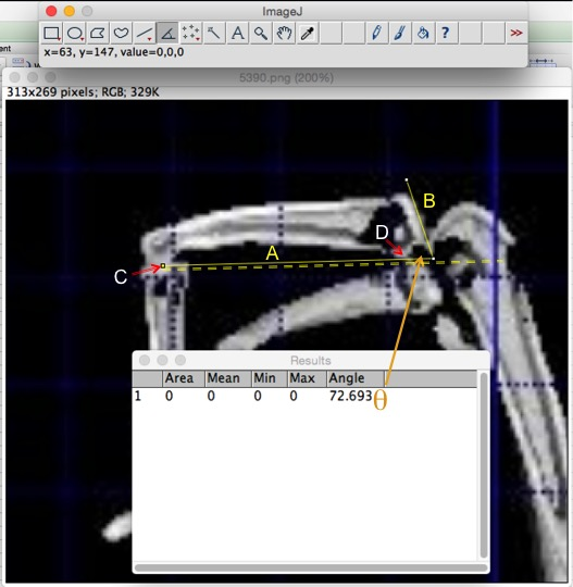Use ImageJ to measure the canting angle between the proximal joint and plantar surface. Proximal to the right, distal to the left.