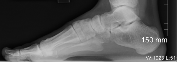 An X-ray of my foot. Note that most of the individual foot bones are filled with tiny 'spicules' (=trabeculae) of bone. Very often they have a very directed, or non-random, orientation, such as in the heel.
