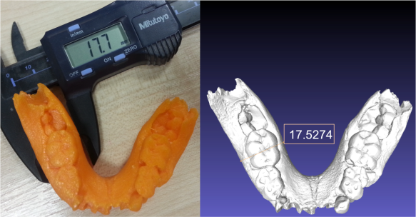 Lower jaw of an infant Australopithecus boisei (KNM ER 1477). Left is the plastic cast printed from the laser scan on the right.