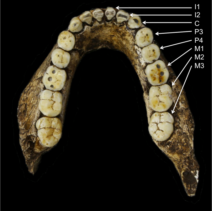UW 101-1277 mandible, part of the Homo naledi holotype skull. Modified from the Wits media gallery.