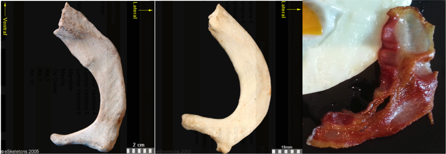 Osteology Everywhere: Bacon or first rib? | Lawn Chair Anthropology